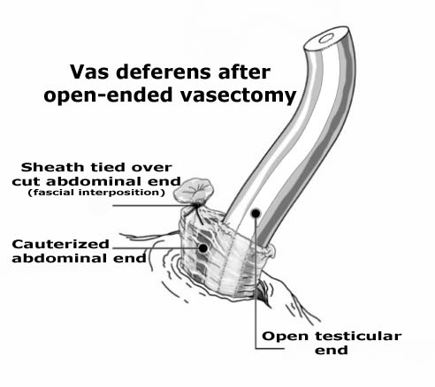 Open-ended vasectomy with Fascial Interposition